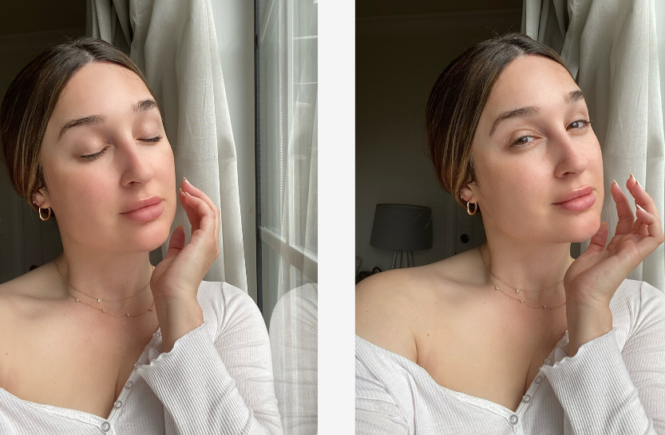Cosmetics Treatments I have Done For My Acne Scars- Jax and Rose